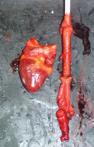 DCCO heart & trachea